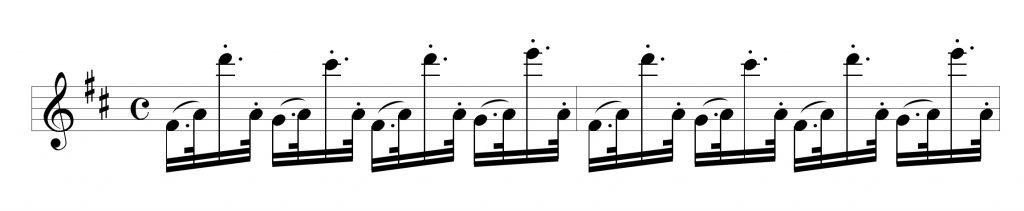 broken rhythm A